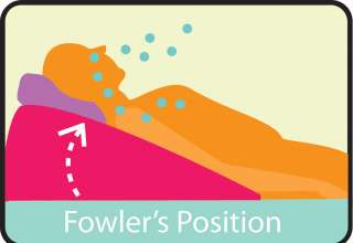 Fowlers Position